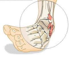 diagram of ankle injury