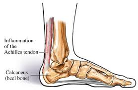 Achilles Tendinopathy inflammation