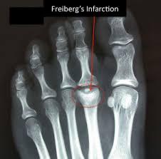 Frieberg Disease