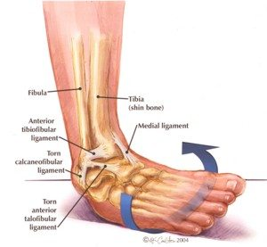 do you have an ankle injury or sprain? put your feet in our hands Ankle Arthritis Diagram diagram explaining areas of ankle injury