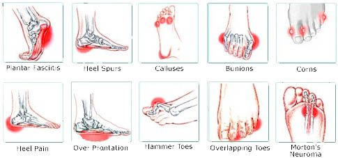 Do You Suffer From Pain In Your Foot Arch Put Your Feet In Our Hands