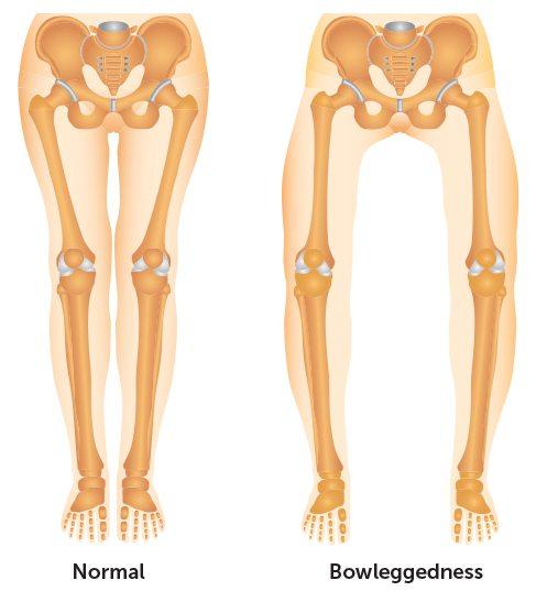 illustration of normal versus bow legs