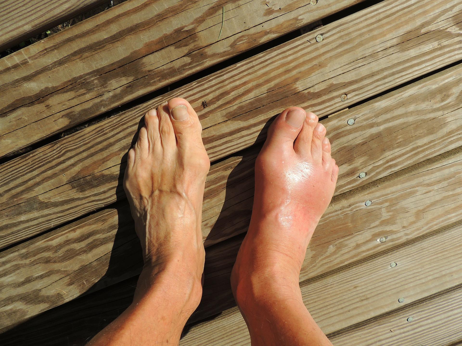 feet 174216 1920 - Gout
