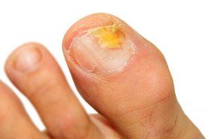 fungal toenail 300x198 - Fungal Toenails and Onychomycosis