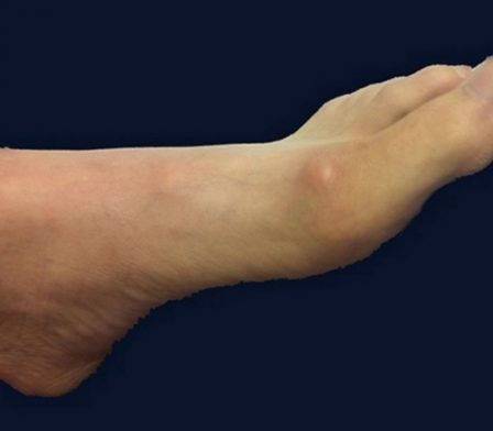 photo of ganglion cyst on top of foot