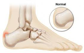 haglund1 - Heel Pain and related conditions