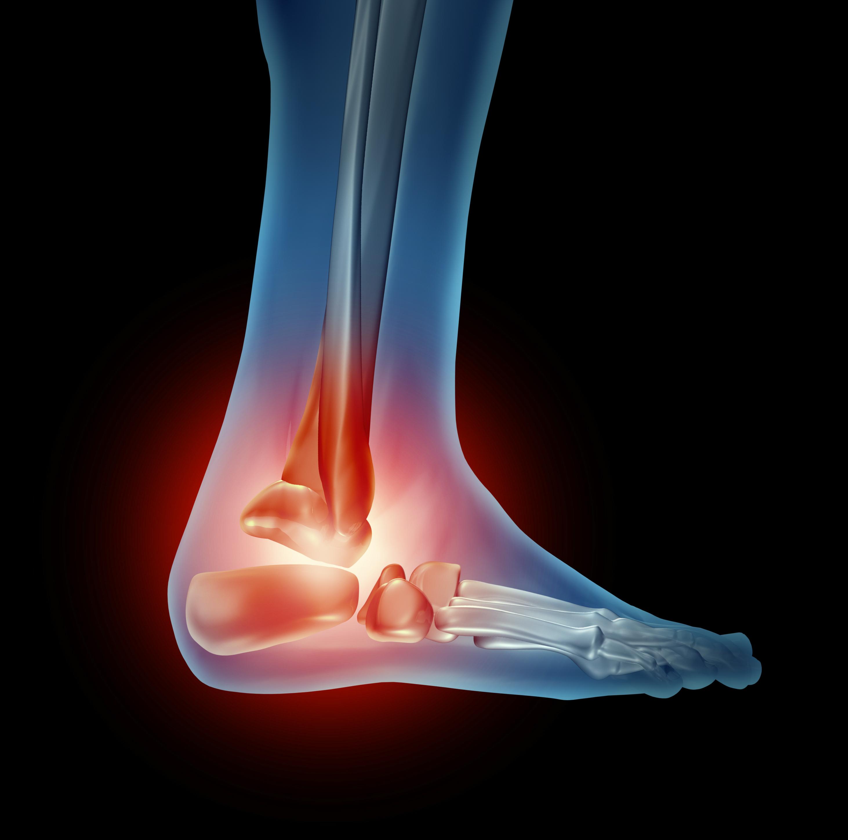 heel pain 2 - Haglund's Deformity