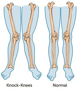 knock knee and normal knee