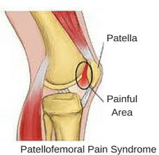 netballmarch2018 4 - Patellofemoral Pain Syndrome
