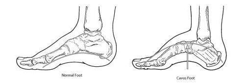 diagram of normal versus high arch foot