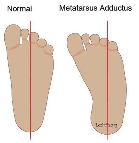 image of metatarsus adductus
