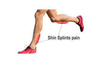 shin splints pain areas
