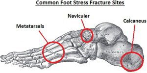 diagram showing common foot stress fracture sites