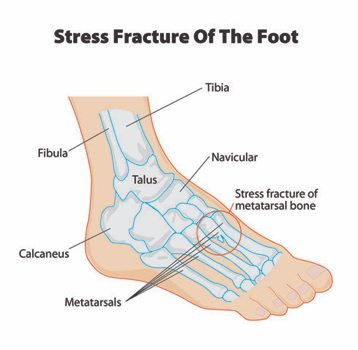 illustration of stress fracture of the foot