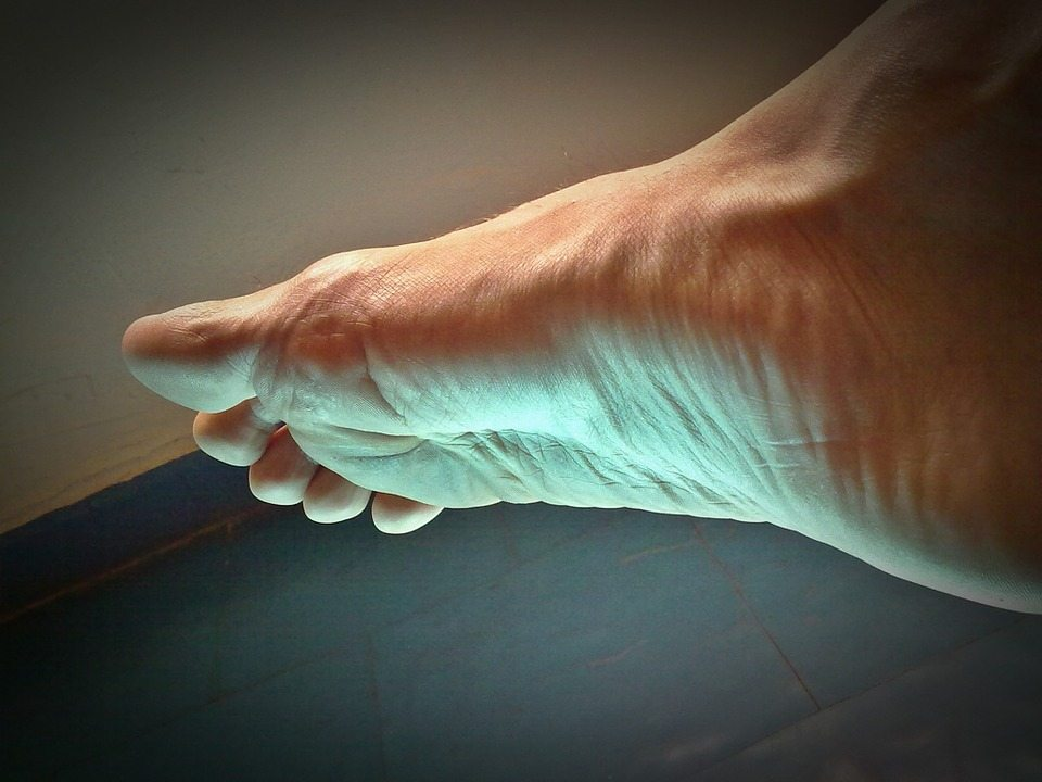 foot 57128 960 720 - Plantar Fasciitis