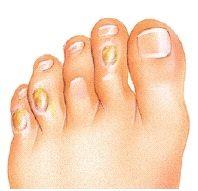 minimally invasive foot surgery