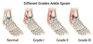anklesprain1 300x144 - Ankle Injuries