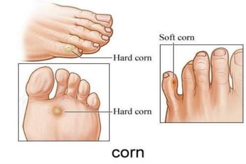 corns new - Hammertoe Surgery