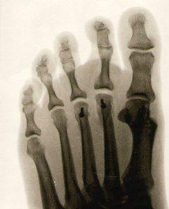 foot 1767724 1920 243x300 - Hallux Rigidus or Big Toe Surgery