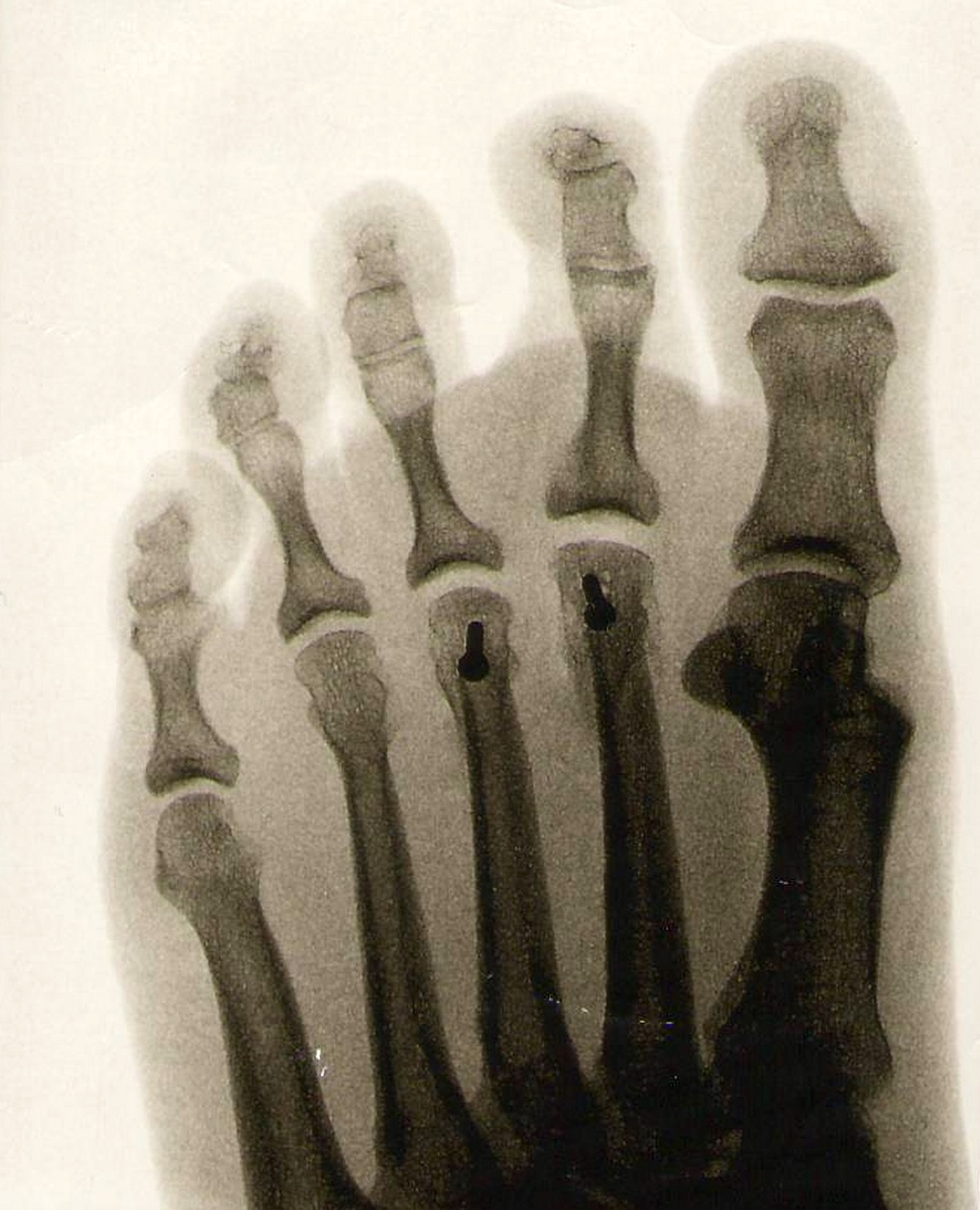 foot 1767724 1920 - Hallux Rigidus or Big Toe Surgery