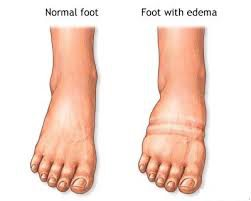 pregnancy2 - Oedema – Hot and Swollen Ankles and Feet