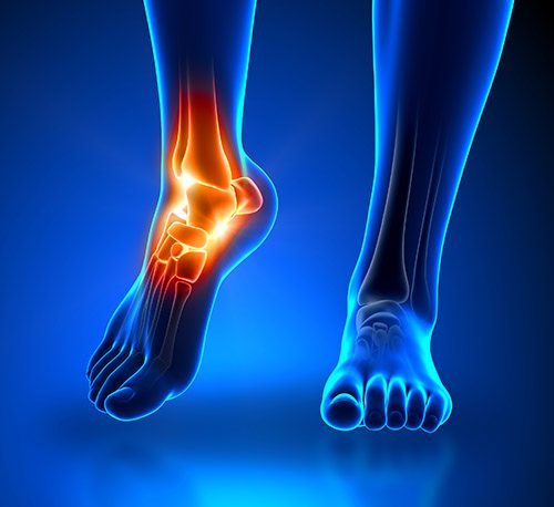 Ankle Pain - Osteoarthritis and Podiatry
