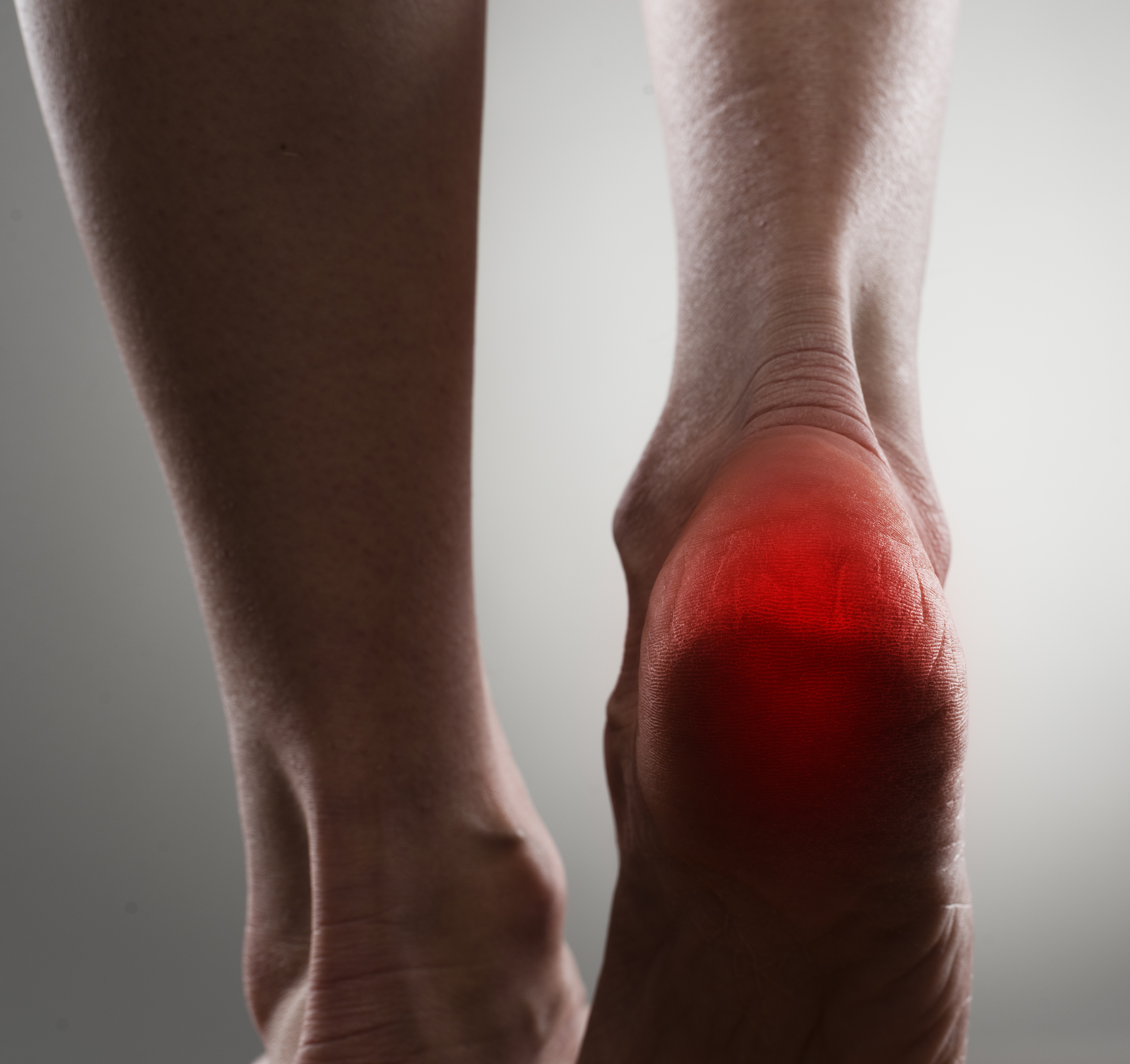 Heel pain 3 - Shockwave Therapy for Heel Pain and Heel Spurs