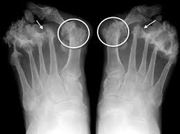 arthritis2 - Osteoarthritis and Podiatry