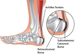 hb1 - Heel Pain and related conditions