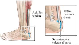 hb2 - Heel Pain and related conditions