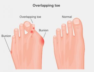 overlappingtoe 300x230 - Overlapping and Underlapping Toes
