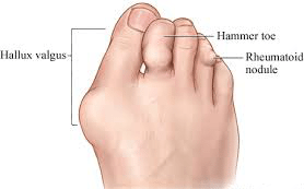 rheum2 - Rheumatoid Arthritis