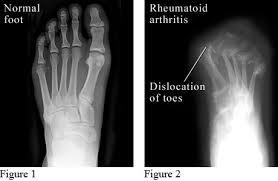 rheum3 - Rheumatoid Arthritis