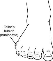 tb1 - Tailor's bunion - bunionette
