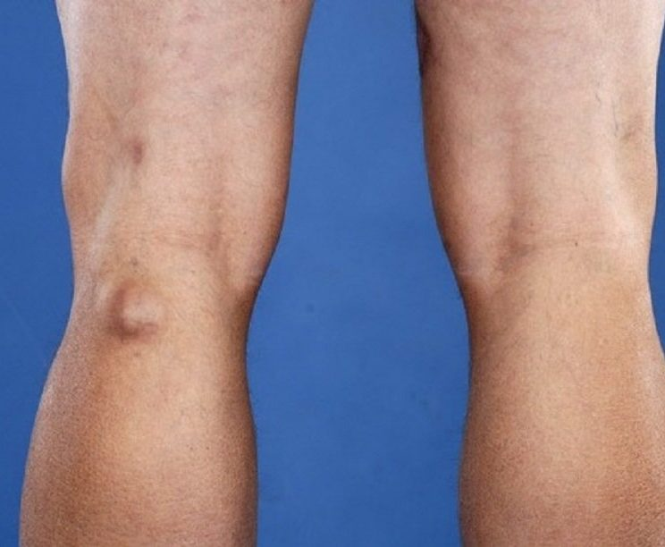 Baker's Cyst (Popliteal Cyst) - The Foot and Ankle Clinic