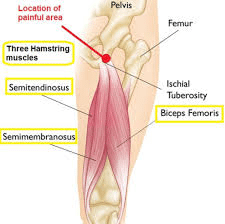 hamstring2 - Shockwave Therapy for Hamstring Tendinopathy