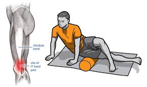 itbs3 - Iliotibial band syndrome