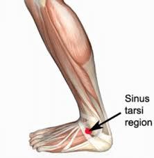 Sinus tarsi syndrome
